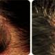 アレルギーの種類と対処方法